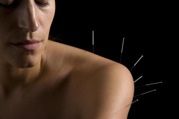 Acupuncture - shoulder treatment